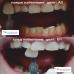 Апарат за кабинетно избелване на зъби - FUTURA 2400