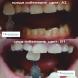 Избелваща Писалка за Зъби XL CP16%