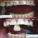Апарат за кабинетно избелване на зъби - FUTURA 2400 DENTAL